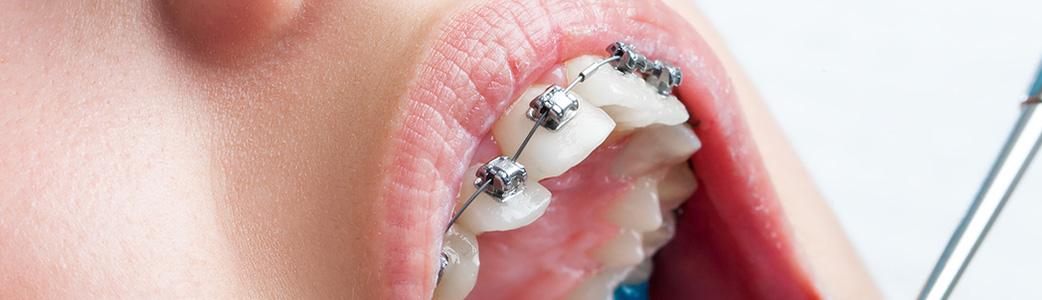 closeup of braces on adult teeth