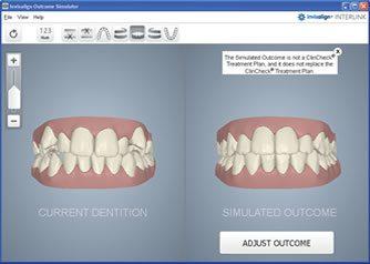 Smile Simulator